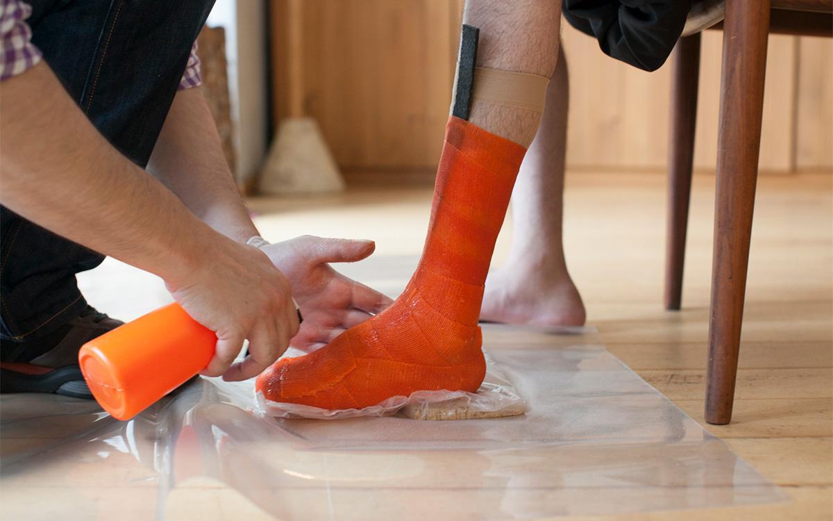 矯正靴の制作手順 採型